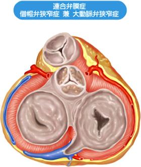図2. 病的心臓の横断面(連合弁膜症:僧房弁狭窄症と大動脈弁狭窄症)