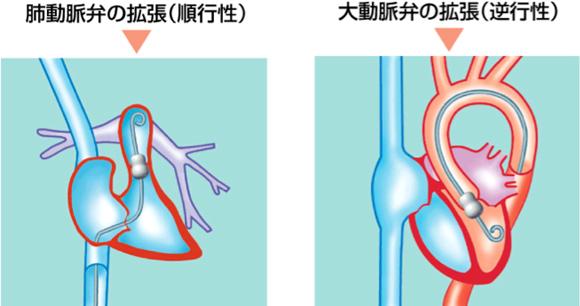 図4. 弁膜症に対するバルーン・カテーテル治療 左図:肺動脈弁狭窄症に対する経皮的肺動脈弁裂開術(順行性アプローチの例) 右図:大動脈弁狭窄症に対する経皮的大動脈弁裂開術(逆行性アプローチの例)