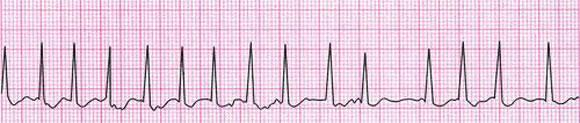 心電図:心房細動の症例  心拍数が早く不整であることがわかる