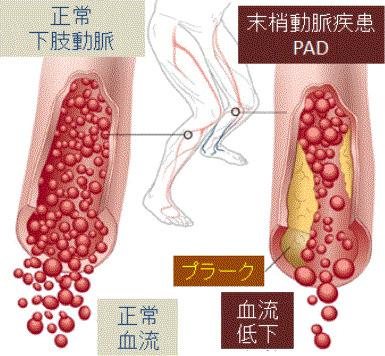 図1. 末梢動脈疾患(PAD)の病態:プラーク形成により血管内腔が狭くなり、 血流低下や閉塞から循環障害を引き起こす。