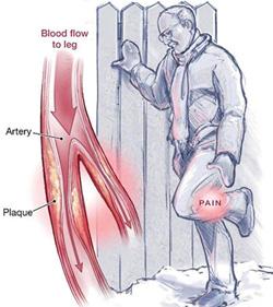 図2. 間欠性跛行の症状