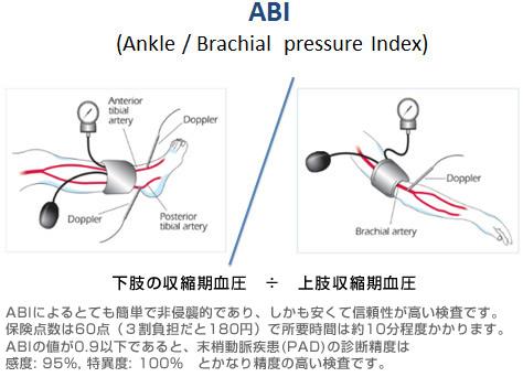 図3.ABI検査について