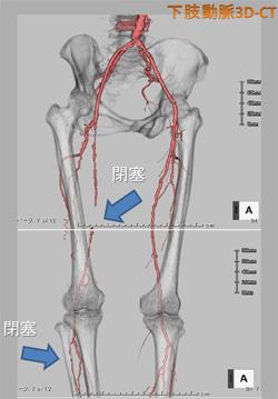 図4. 下肢動脈3D-CTにて右浅大腿動脈(SFA)に閉塞病変(矢印)を認める。