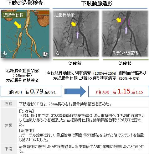 図5. 風船・ステント治療の様子
