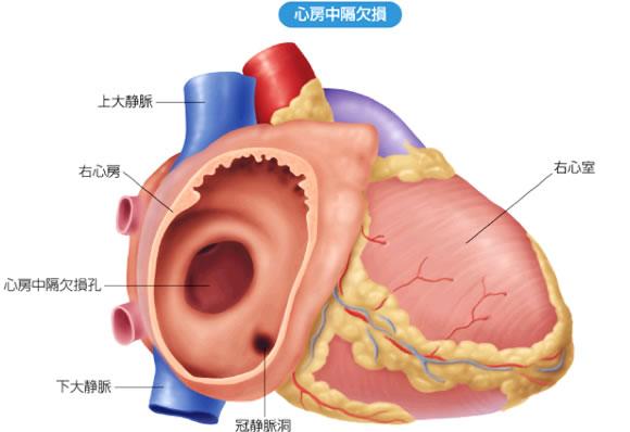 心房中隔欠損症:心房中隔に欠損孔が認められる。