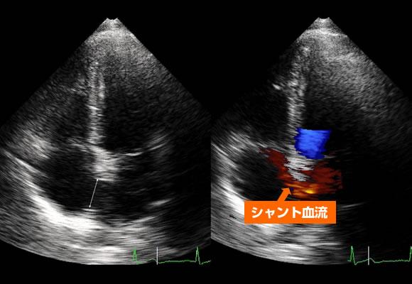 心房中隔欠損症:心房中隔欠損孔を通してシャント血流(矢印)が認められる。
