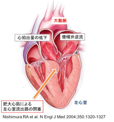 図1:閉塞性肥大型心筋症とは