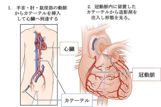 図:冠動脈造影検査の手順