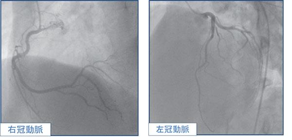 冠動脈造影検査(正常の冠動脈)