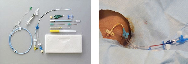 写真:中心静脈カテーテルセットとカテーテル留置後の状態(内頸静脈の例)