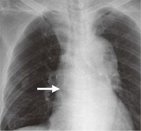 写真:中心静脈カテーテル留置後の胸部レントゲン写真。 カテーテル先端が適切な位置(矢印)にあることが確認できる。