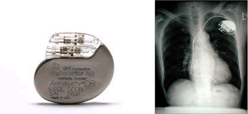 写真:ペースメーカー(ジェネレーター)と ペースメーカー植え込み術後のレントゲン写真