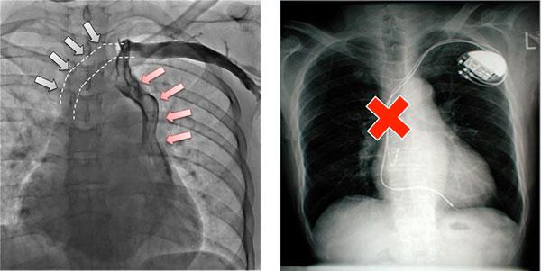 写真:左上大静脈遺残の症例(左図)。