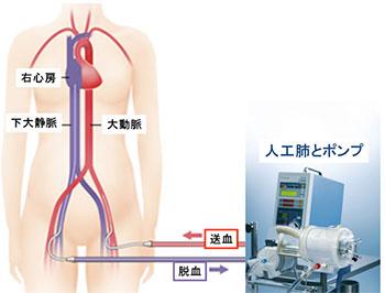 図: PCPSに用いる人工心肺装置と回路