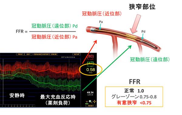図:冠血流予備量比 (FFR) の説明