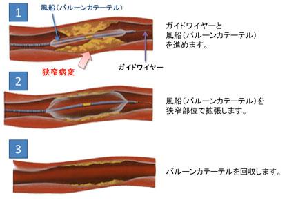図説:風船(バルーンカテーテル)による経皮的血管形成術(PTA)の様子