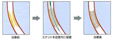 図:ステント留置の様子 風船治療と同様の手技で、ステントを血管内に留置する。