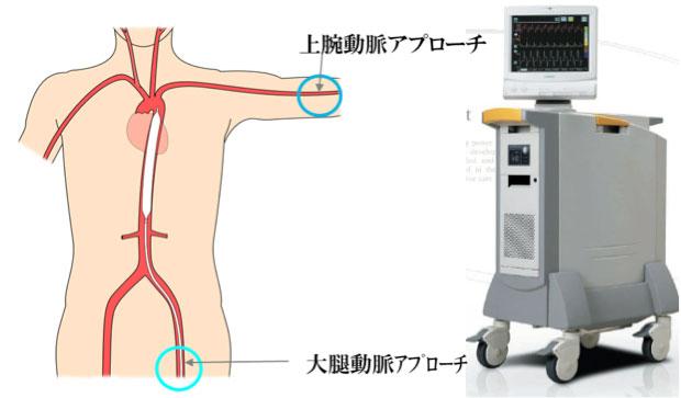 図:IABPバルーンカテーテルの挿入部位・留置場所(左)と外部駆動装置(右)