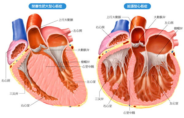 図: 心筋症の例(左;肥大型心筋症 右;拡張型心筋症)
