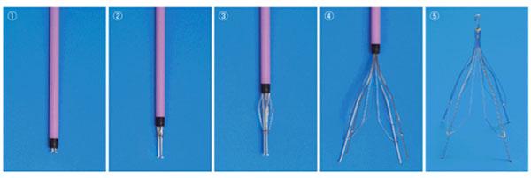 写真:下大静脈フィルター留置の手順 図のようにカテーテルに収納されていた下大静脈フィルターを留置していく(① → ⑤)。