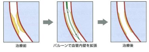 図2:風船治療