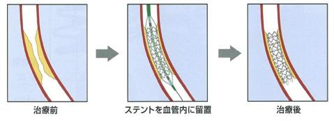 図3:ステント留置術