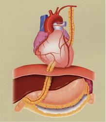 図4: 冠動脈バイパス術の例:内胸動脈や胃大網動脈を冠動脈に移植(バイパス)する。