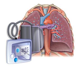 図:肺の血圧が高い状態を肺高血圧と呼びます。