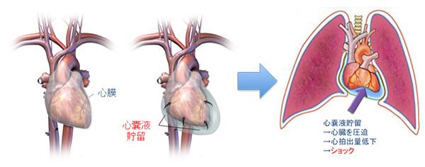 図1:心嚢液が異常に増加すると心臓が外から圧迫され、心臓の拡張をさまたげる(心タンポナーデ)