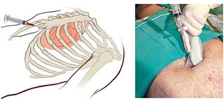 図2:心嚢穿刺の様子。心エコーガイド下に心嚢穿刺を行います。