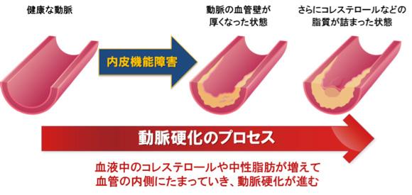 図:動脈硬化のプロセス